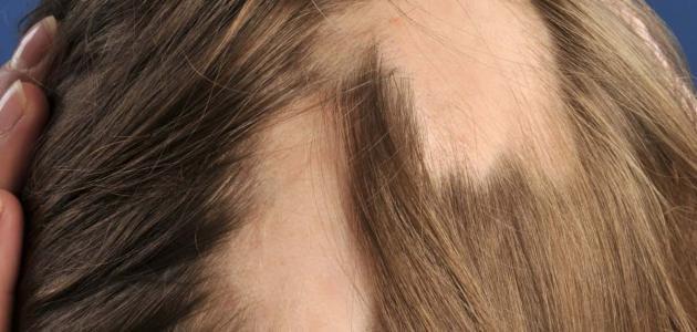 فروة رأس مصابة بالثعلبة